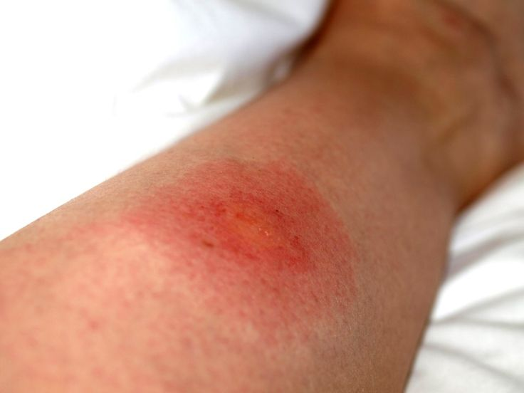 Insect bites are very painful, and most of the time the place where an insect bitten you starts swelling. And that depends on the insect that bites you. Well, there is an ancient remedy, and I can say very quickly, that can get rid you of an insect bite in a blink of an eye. …