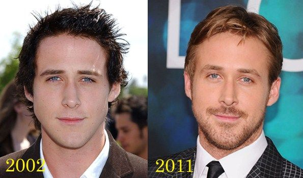 Plastic surgery for men ? See the most popular ones. including tom cruise and #ryangosling