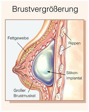 #Schönheitsoperation - wie weit geht der #Trend in der #Medizin ? http://www.zahn-implantate-berlin.de/deutsch/news/schoenheitsoperation.html