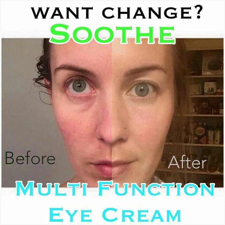 This picture speaks a thousand words! Redness and eye puffiness gone...R+F skincare can take care of so many skin issues! Click on this link to see which product/s will target your skin concerns https://iarman.myrandf.com/Pages/OurProducts/GetAdvice/SolutionsTool then message me to get you started. indra.arman@gmail.com