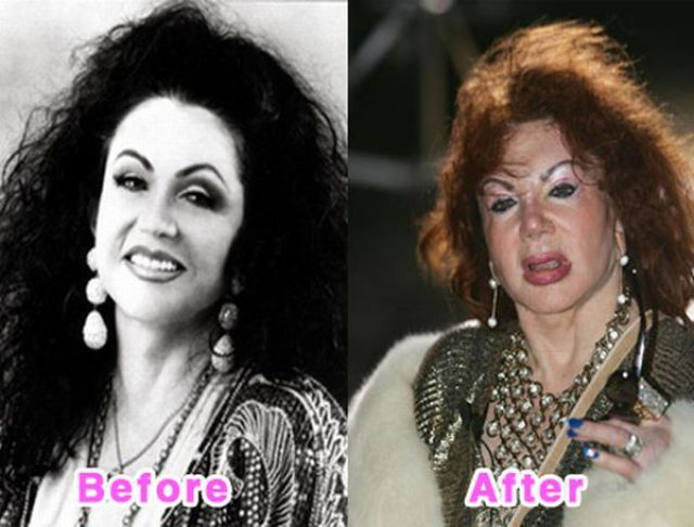Jackie Stallone - Plastic Surgery Before and After