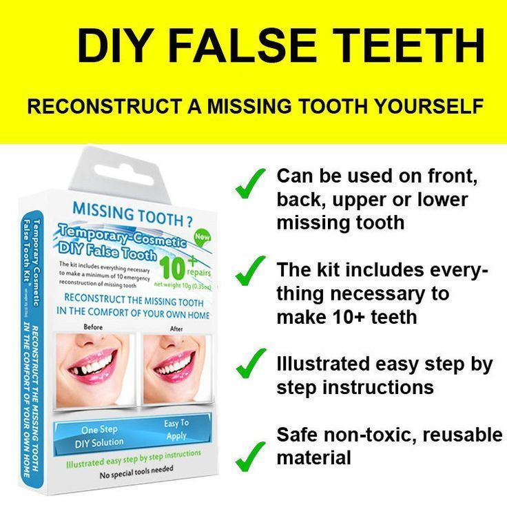 Used Dental Bridge Cost Beautiful Smile Oralhealthcare Dentalofficerenovation In 2020 Tooth Repair Tooth Replacement Temp Tooth