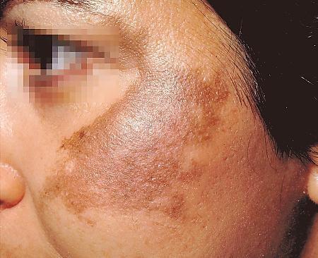 53 best Skin melasma hyperpigmentation images on Pinterest ...