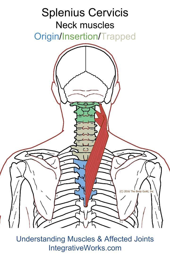 Understanding Trigger Points - Neck-ache headache, eye-ache that creates irritation and anxiety.