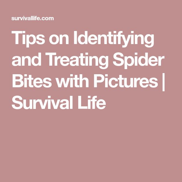 Tips on Identifying and Treating Spider Bites with Pictures | Survival Life