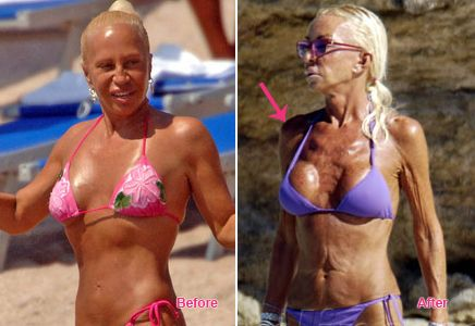 Chatter Busy: Donatella Versace Before Plastic Surgery