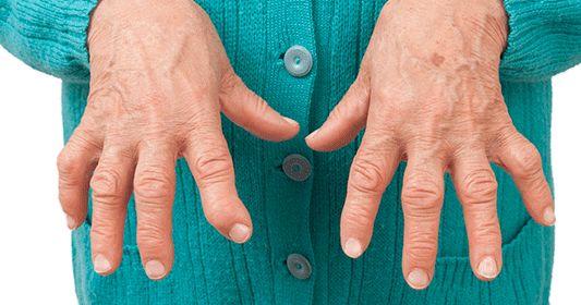La artritis reumatoide es una enfermedad degenerativa de carácter crónico caracterizada por la inflamación de la membrana que protege las...
