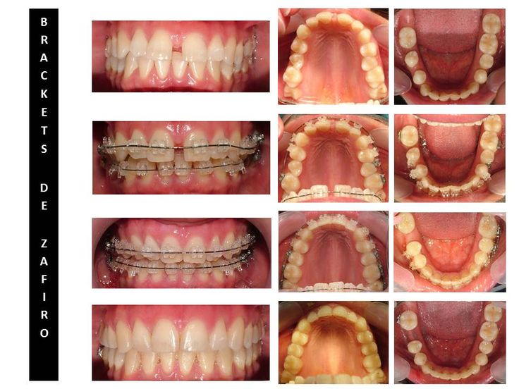 Brackets zafiro para maxima discrecion #confort y #estetica #ortodonciamvm #clinicadental #tratamientodeortodoncia #bracketszafiro