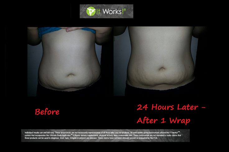 """Wow! I lost 1"""" in 24 hours, using just 1 wrap :) Now I am a true believer in these products! Loyal customers get a box of 4 for just $59 here: https://finallyliving.myitworks.com/Shop/Product/135   The loyal customer enrollment page is towards the end of the checkout process if you are interested in the savings. Otherwise you can do a one time purchase of a box of 4 for only $99!"""