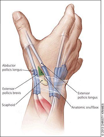Evaluation and Diagnosis of Wrist Pain. Unidad Especializada en Ortopedia y Traumatologia www.unidadortopedia.com PBX: 6923370 Bogotá, Colombia.