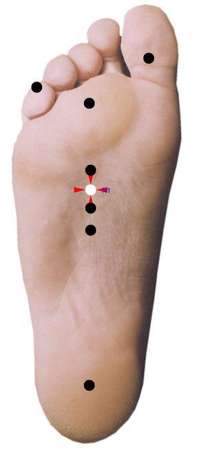 Punkty stymulacji metodą elektropunktury i akupunktury dla schorzenia: Skąpomocz