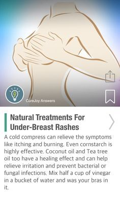 Natural Treatments For Under-Breast Rashes - via @CureJoy