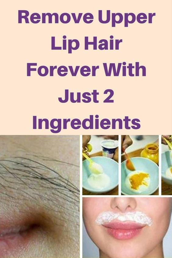 Remove Upper Lip Hair Forever With Just 2 Ingredients!!!