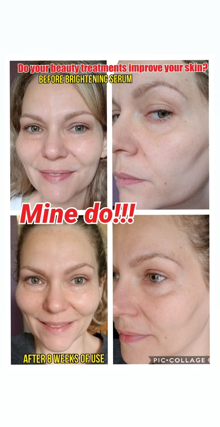 Results Improved skin texture, decrease in redness