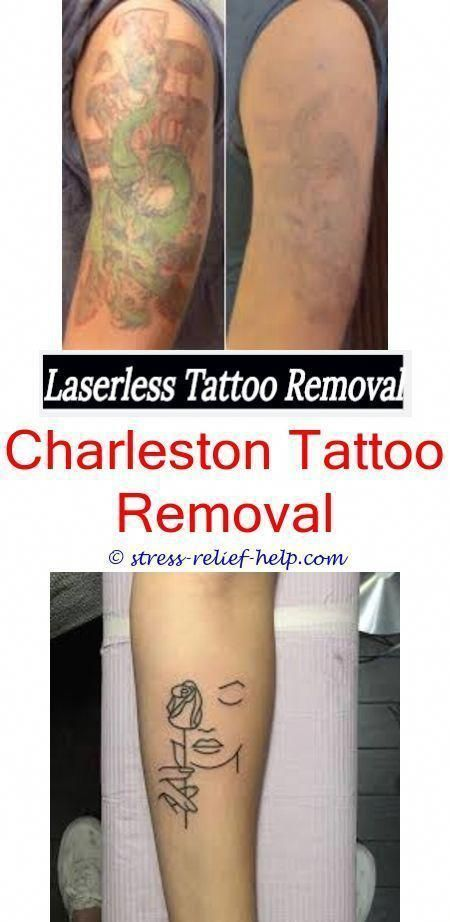 low cost tattoo removal non laser tattoo removal before and after ...