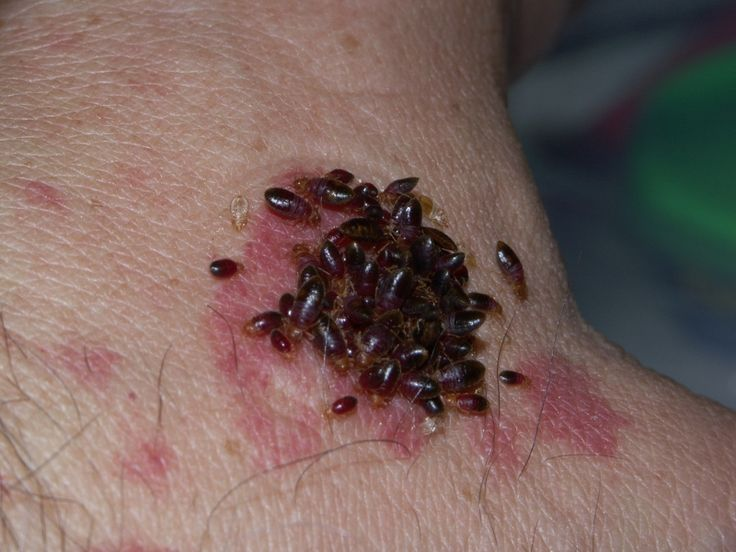 Best 25 bed bug bites treatment ideas on pinterest bed bugs does ozone kill bed bugs ccuart Choice Image