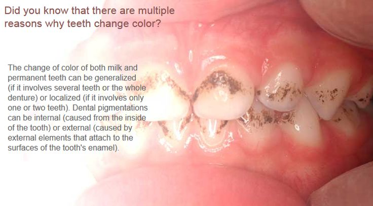 changes in the color of teeth