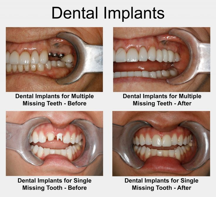 Before-after images of dental implants placed in the jaw and a dental bridge is fitted on them. Budapest Top Dental, Hungary, Europe. If you want to know how you can save 70% on dental implants with us, please, contact us. http://budapest-top-dental.eu