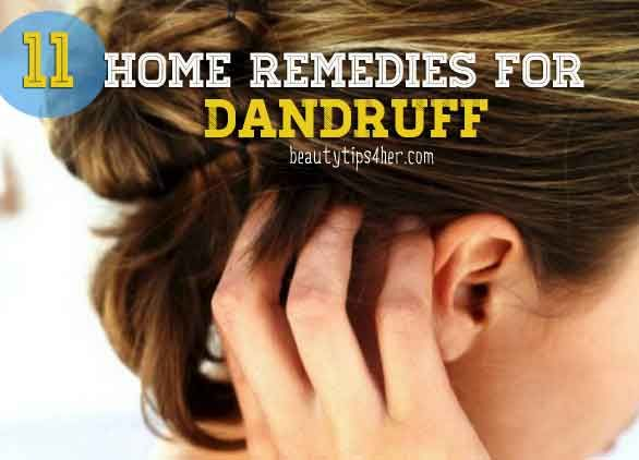 11 Natural Home Remedies for Dandruff | Beauty and MakeUp Tips