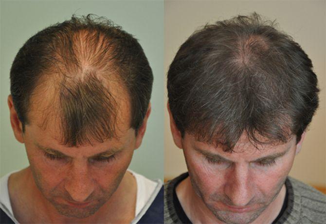 Checklist for Male Pattern Baldness - http://htainfo.tumblr.com/post/141027442399/male-pattern-baldness-treatment-abroad-checklist