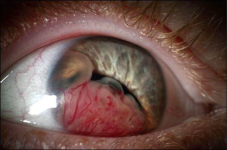 Ciliary Body Medulloepithelioma in a 10-Year-Old Boy. Arch Ophthalmol. 2012;130(7):881. doi:10.1001/archophthalmol.2011.2482.