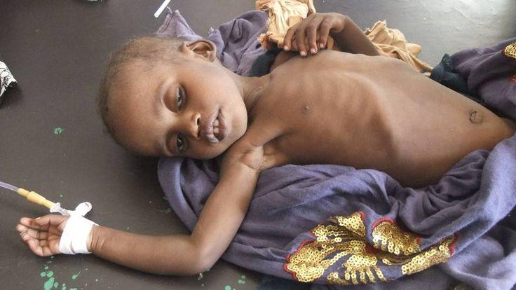 criança fome nordeste - Pesquisa Google: