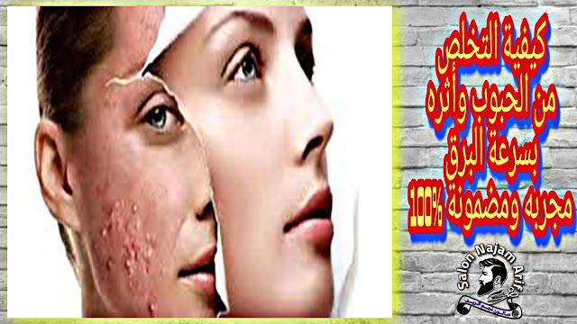 تعتبر حبوب الوجه مشكل يواجه الشباب لكن خلطة اليوم تعمل على علاج الحبوب في الوجه و علاج حب الشباب و علاج الحبوب في الجسم New Scientist Baseball Cards Scientist