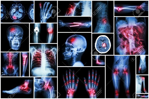 X-ray multiple disease ( stroke (CVA) , fracture , shoulder dislocation , bowel obstruction , rheumatoid arthritis , gout , osteoarthritis knee , orthopedic surgery , pulmonary tuberculosis (TB), etc)