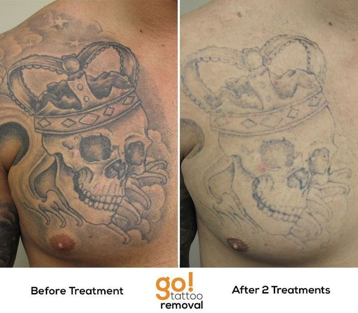 Phenomenal fading on this black and grey chest plate after just 2 laser tattoo removal treatments. #lasertattooremoval #tattooremoval #KidsTattooRemoval