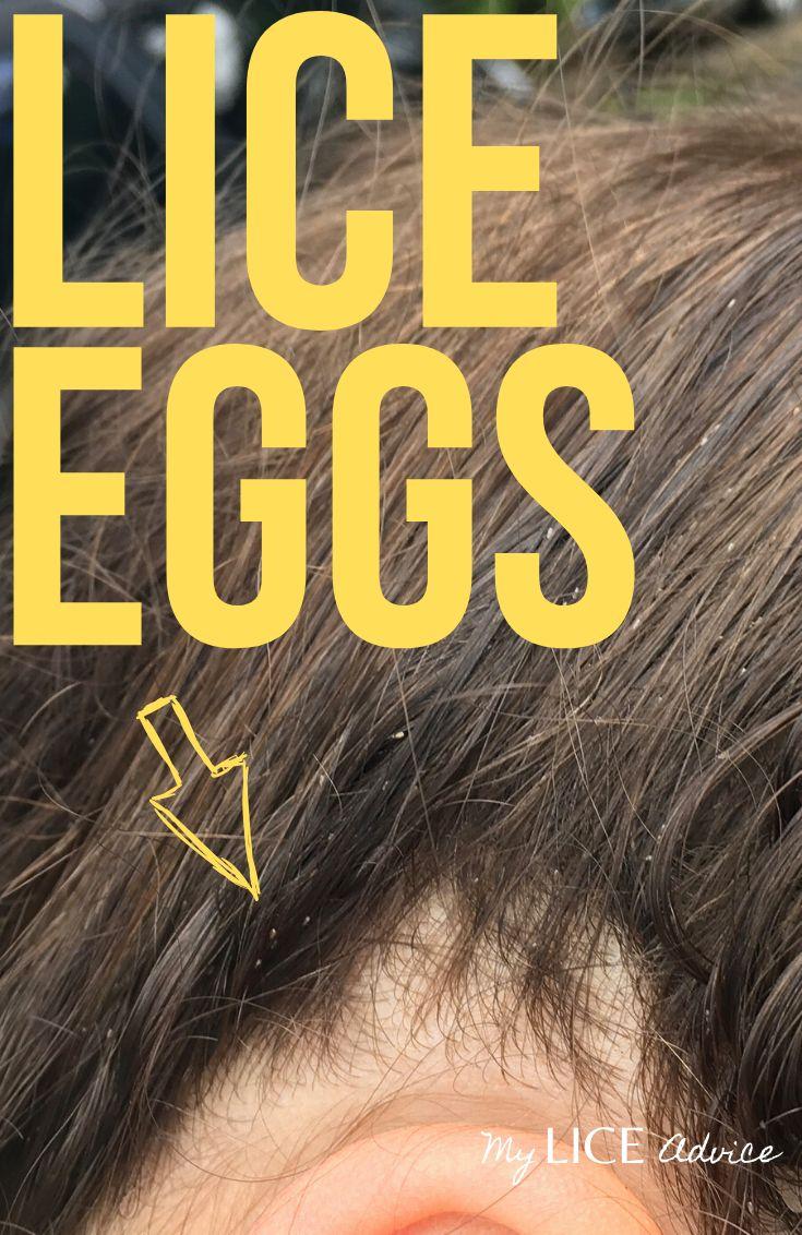 Park Art My WordPress Blog_Lice Eggs In Black Hair