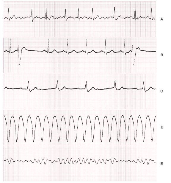 A, Atrial fibrillation. B, Premature ventricular contractions. C, Complete (third-degree) heart block. D, Ventricular tachycardia. E, Ventricular fibrillation.