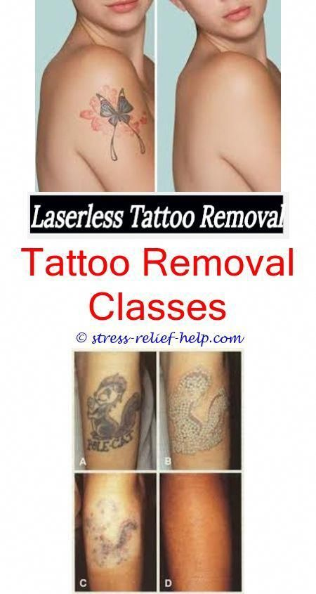 Tattoo removal surgery before and after.Can you remove a tattoo in ...