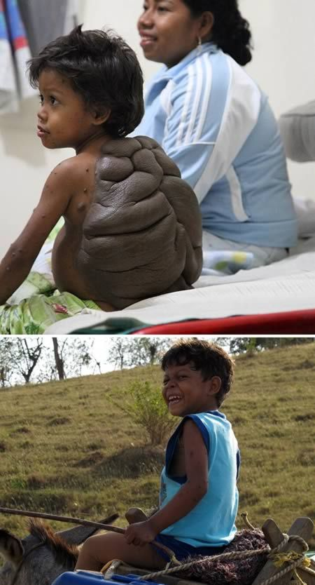 """A young lad branded """"turtle boy"""" because of a huge shell-like growth on his body is finally free of the birthmark thanks to a British surgeon. Little Didier Montalvo suffered from Congenital Melanocytic Nevus, which meant a mole grew so large that it almost covered his entire back.  The six-year-old from Colombia was teased and banned from going to school because of the growth."""