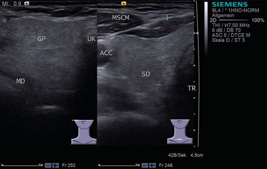 Split screen of the thyroid (SD) and parotid gland (GP) on the left. Both solid glands show a similar homogeneous hyperechoic pattern of internal echoes. ACC, common carotid artery; MD, digastric muscle; MSCM, sternocleidomastoid muscle; TR, trachea; UK, mandible.