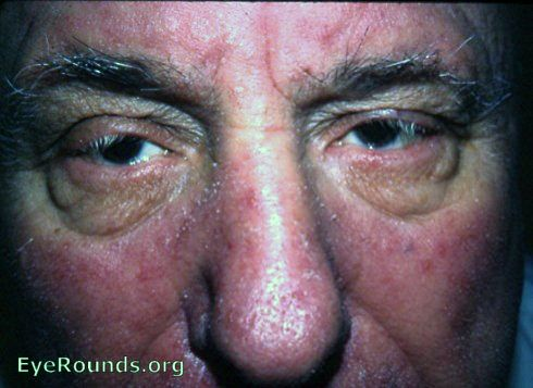Eye Acne Rosacea The best place to find how to have joyful life! http://myhealthplan.net