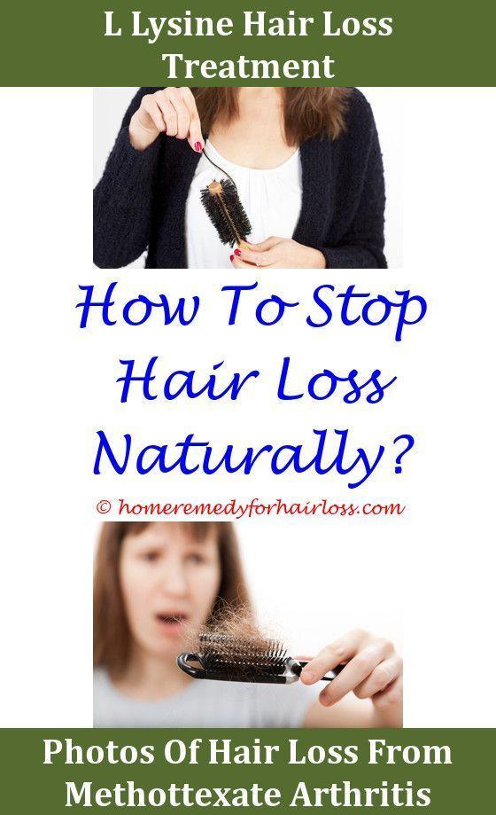 hair loss due to masturbation