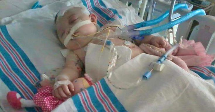 Mom Shares Story Of Daughter With Shaken Baby Syndrome To Help Other Parents via LittleThings.com