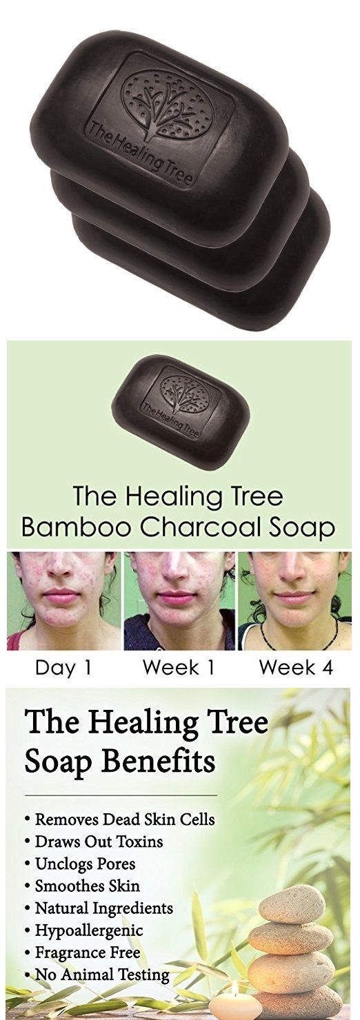 Bamboo Charcoal Soap - Facial Cleansing Treatment For Acne Prone Skin