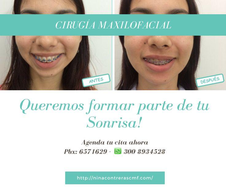 Vuelve a Sonreír ✅Sonríe de Forma Natural ✅Luce una Sonrisa que Robe Miradas ✅Le Damos Forma a una Sonrisa BELLA Agenda tu #cita ya: ☎️ 6571629 📲 300 8934528 #implantesdentales #ortodoncia #diseñodesonrisa #dentalimplants #orthognathicsurgery #surgery #maxillofacialsurgery #orthodontics #smiledesign #smile #teethwhitening #teeth #oralrehabilitation #bichectomy #ninacontreras http://ninacontrerascmf.com/