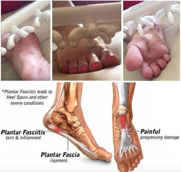"Broken into its parts, ""plantar"" is the bottom surface of the foot. It's just the anatomical region's name. ""Fascia"" is the anatomical region of the #pain, meaning ""within the fascia"", and ""itis"" means swollen.  So, by the very definition of the words Plantars Fasciitis, you can now understand that the #fascia in the bottom of your foot is swollen. Read More: www.AshleyBlackSystems.com/blog/how-to-cure-plantars-fasciitis-permanently"