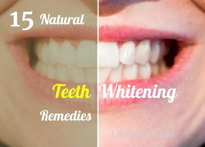 15 Teeth Whitening Remedies 15 of the best teeth whitening tips and tricks using natural everyday products. Eating cheese,Oil pulling,burnt toast, Baking soda and hydrogen peroxide, salt and more.. 1. Strawberries Strawberries contain malic acid and vitamin C, these are two ingredients that are said to naturally brighten your teeth by removing surface stains. Mix …