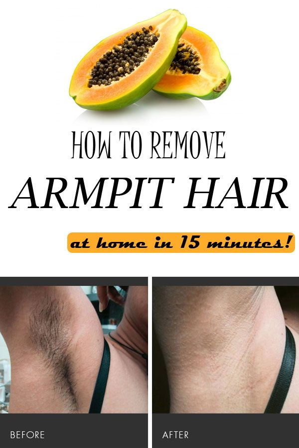 You will be amazed to see that, used in perfect quantities, common ingredients that you have at home, will help you remove the unwanted underarm hair.