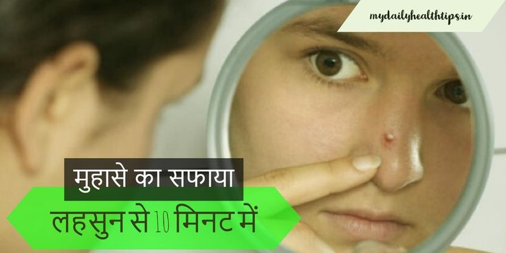 लहसुन से 10 मिनट में करे मुहासे का सफाया | Instant Remove Pimples using Garlic - My Daily Health Tips - Health Care Tips & Healthy Living Advice in Hindi