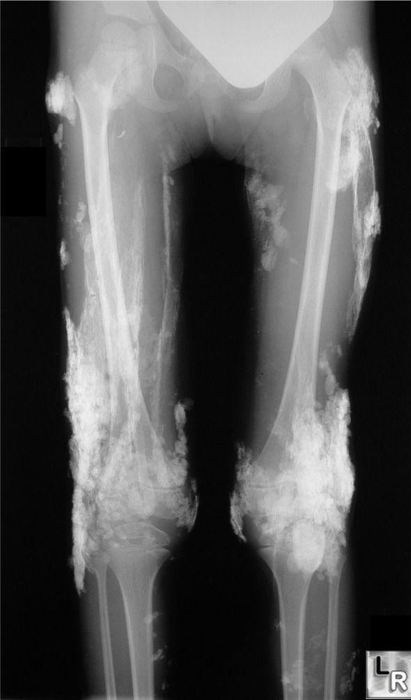 Dermatomyositis  Sheet like calcifications seen in patients with dermatomyositis is called calcinosis universalis because Pinterest