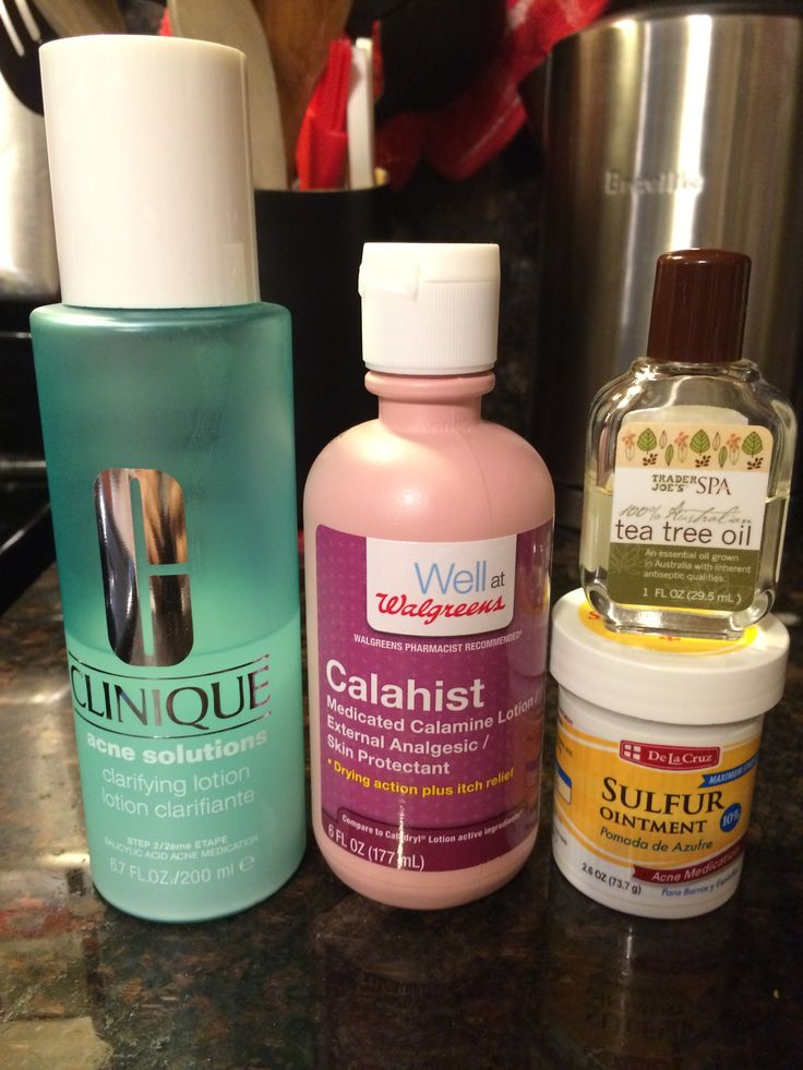 Diy drying lotion what you will need calamine lotion