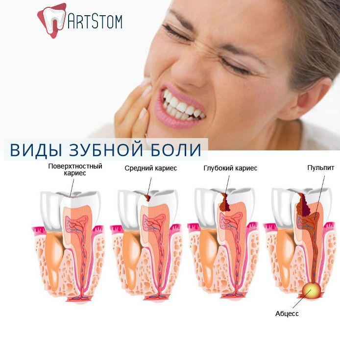 Виды зубной боли:    🔷При кариесе. Очень часто встречается. Представляет собой ноющую боль. Возникает после попадания раздражителей (остатков продуктов питания) в кариозную полость. Обратится с острой зубной болью такого характера, следует к стоматологу как можно быстрее. Не лечение приводит к развитию воспаления челюстных костей, десен.   🔷Острая боль возникает при воспалительных процессах в пульпе. Длится недолго, не более 10 минут. Возникает без видимых причин. Многие радуются этому…