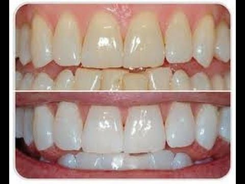 Remedios caseros para dientes amarillos con resultado profesional