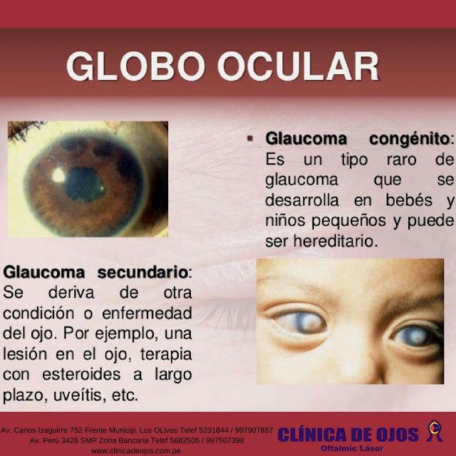 Clínica de Ojos Oftalmic Láser: GLOBO OCULAR