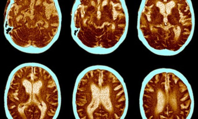 Sophisticated imaging of 1,000 cannabis users' brains found all of them had widespread restrictions or build-ups of blood flow.