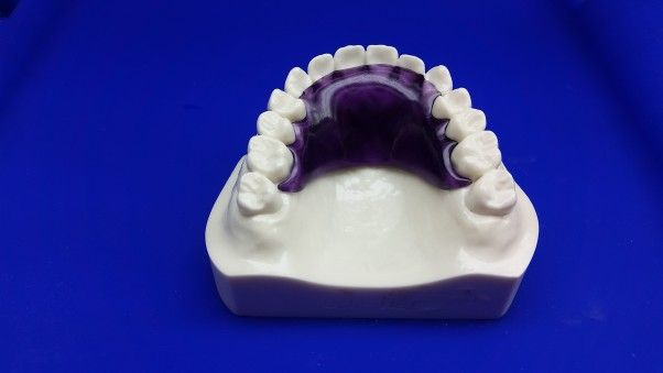Hawley Retainer- Clear Purple......The Hawley Retainer is the most popular retainer that orthodontists use when they remove a patient's braces..........Price: $169(Single) & $199(Set)